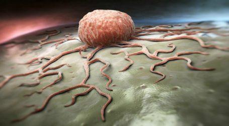 Cura del Cancro: Soppressa